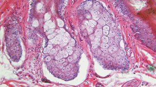 幹細胞とは?