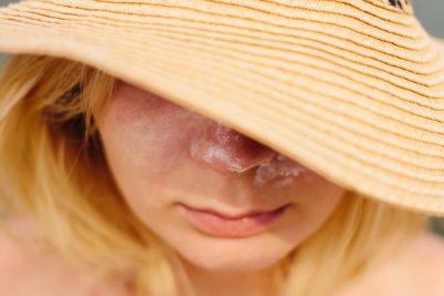 夏の毛穴の原因